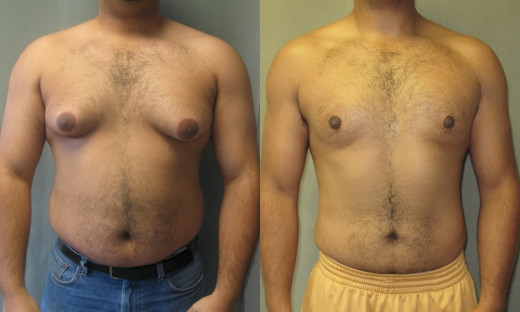 Benigng glandular enlargement of male breast is called gynecomastia. The glandular tissue is hypertrophied in true gynecomastia. Accumulation of fat in the region of the breasts is called pseudogynecomastia.