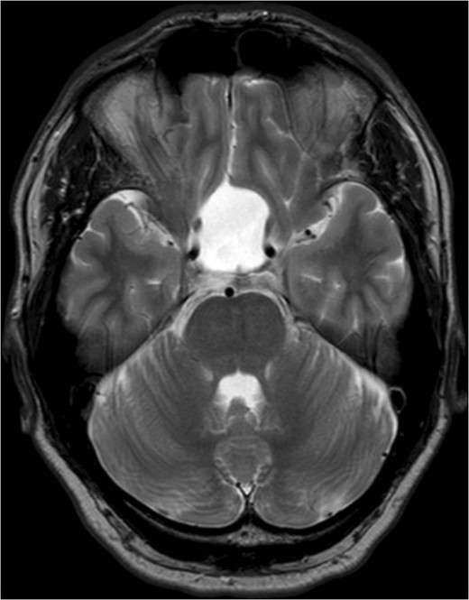 This is a rare disorder in which the pituitary fossa is enlarged with accumulation of cerebrospinal fluid at the expense of pituitary tissue, which may be reduced to a small remnant.