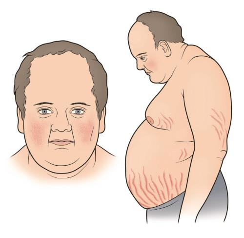 "The affected subject is plethoric with rounded appearance of the face (moon face). There is characteristic obesity with deposition of fat over the neck, shoulders, abdomen and hips. This is called the ""buffalo type"" of obesity."