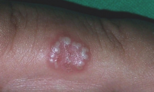 Herpetic Whitlow - Pictures, Treatment, Symptoms, Signs ...