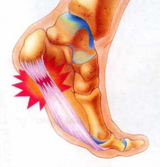 Pictured above is the most common site for plantar fasciitis pain.