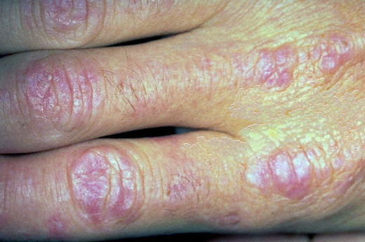 Dermatomyositis is the least common among the connective tissue disorders. It consists of inflammatory and degenerative lesions involving the striated muscle, skin and other connective tissues in varying combinations