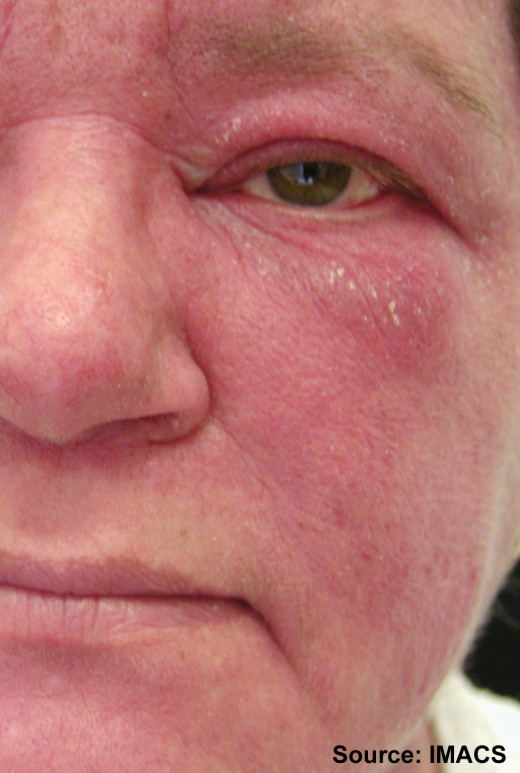 Dermatomyositis is more common in the second, fifth and sixth decades. Women are more affected than men. A wide spectrum of clinical severity ranging from an acute, extensive rapidly fatal paralytic syndrome to a very slowly progressive muscle diseas