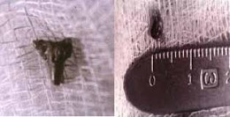 Objects like this appear under the skin of some alien abduction victims.