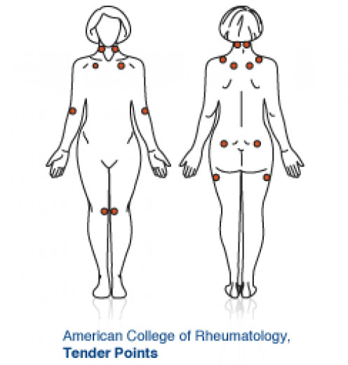 Trigger points for determining ailment