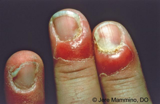 When candida involves the skin around the base of the nails, it produces glazed, red, bolster like swellings with loss of cuticle. Occasionally, the organism invades the nail plate, causing dark brown pigmentation at the lateral margins of the nails.