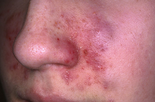 Chronicity develops if the cause persists and it may last for months to years. In chronic eczema, the skin becomes thickened and pigmented with prominent criss-cross marking- termed lichenification- which is the end result of all chronic eczemas.