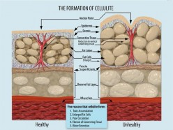 All Natural Solutions for Cellulite