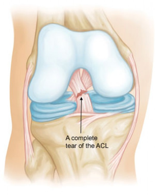A ruptured ACL that would require surgery in order to fix