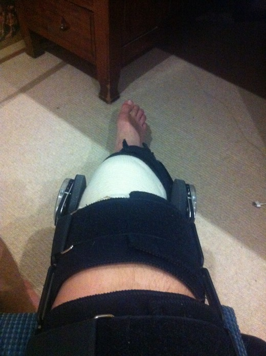 My Knee 7 days post op in a range of motion brace. This restricts me from bending my knee past 90 degrees so that I don't damage my newly repaired meniscus.
