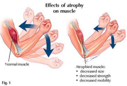 An example of muscle atrophy in the biceps, which is the same principle in all muscles.
