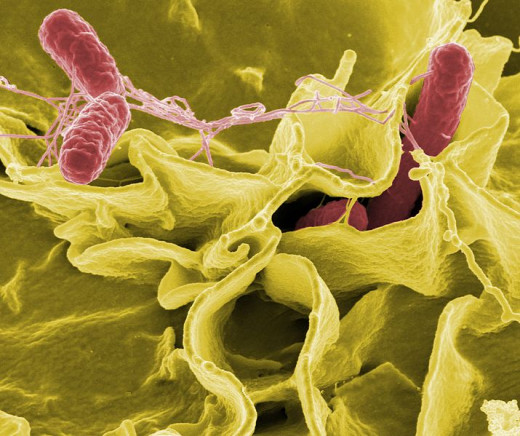 Salmonella bacteria, a common cause of food poisoning, invading an immune cell