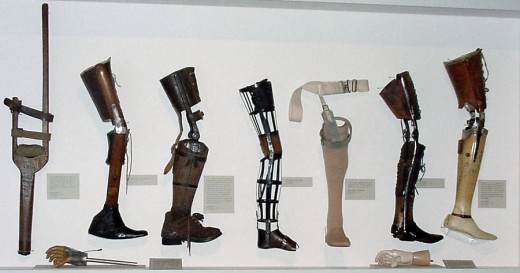 A quick picture guide to the evolution of prothestic legs