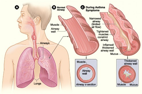 Use herbs for asthma symptoms