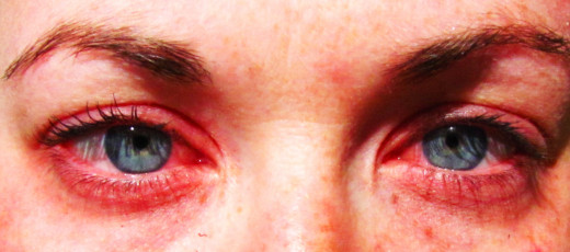 Symptoms of seasonal allergies can include: red itchy eyes, watery eyes, runny nose and sneezing.