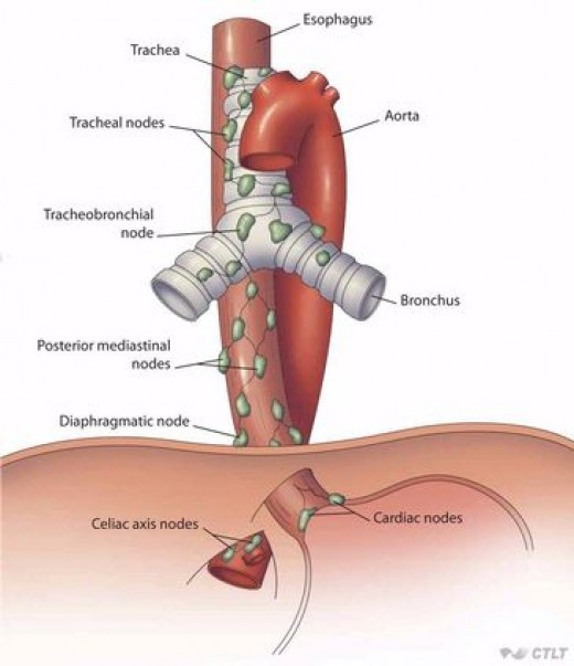 Oesophageal Diverticulum Health Implication: The Story Of ...