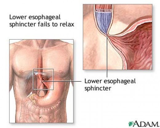 Achalasia is a disorder in which the lower esophageal sphincter