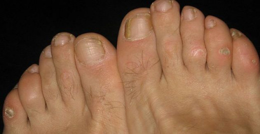 Ignorance of these foot corns, can lead to intense pain in some cases
