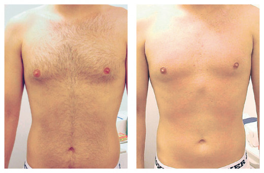 Laser hair removal for man