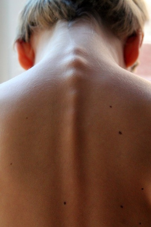 Kink in My Neck Treatment and Exercises