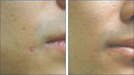 Before and after scar removing