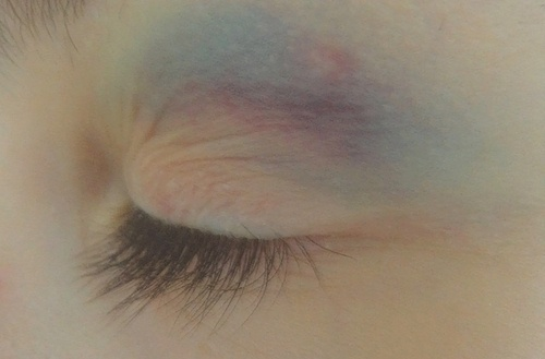 this is an unusual kind of bruise just on the eyelid above the eye.
