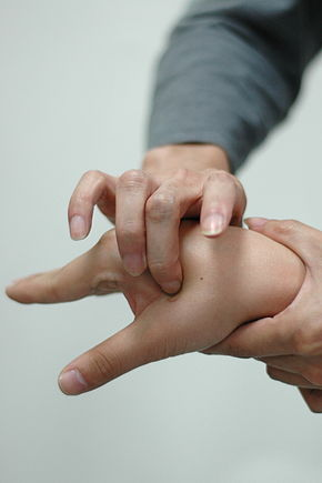 Accupressure is one method of releaving and healing from Carpal Tunnel Syndrome