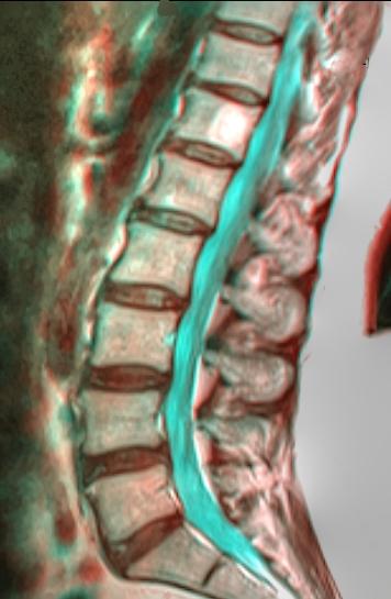 MRI Lumbar