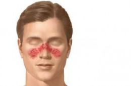 Butterfly-Rash-Lupus-On-Face
