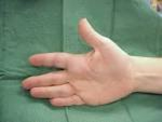 Tendinitis in the hand is a very common health problem