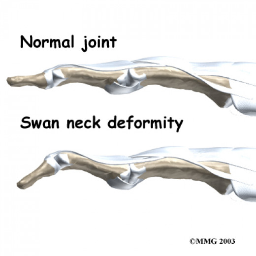 Swan-neck