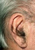 Why do aging males tend to develop hairy ears while aging females don't?