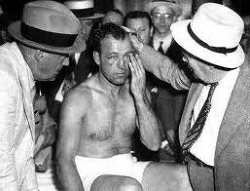 Jack Sharkey sits with a concussion and major facial damage after having just gotten pummeled by The Brown Bomber.