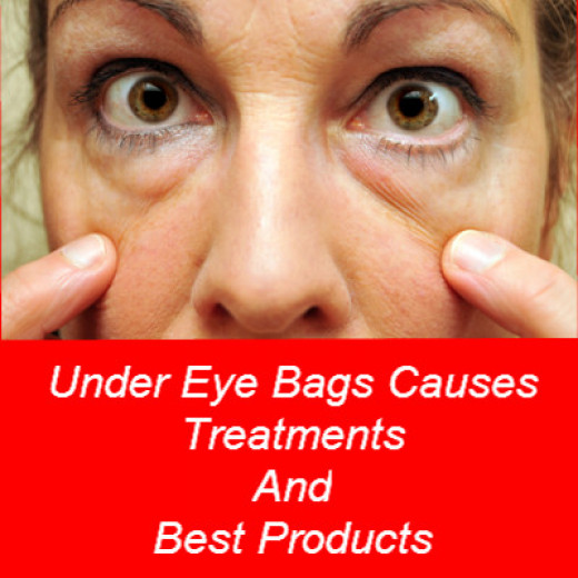 under eye bags treatments causes and best cream