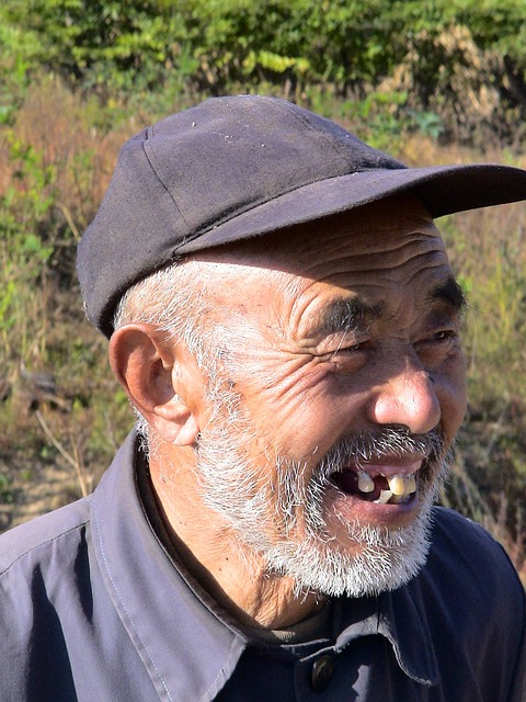 Man from China with severe periodontal disease