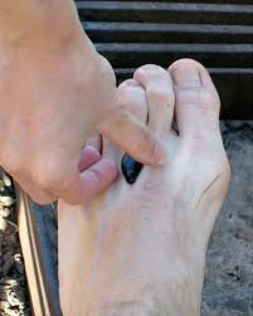 use a bit of nail polish remover to help remove leeches