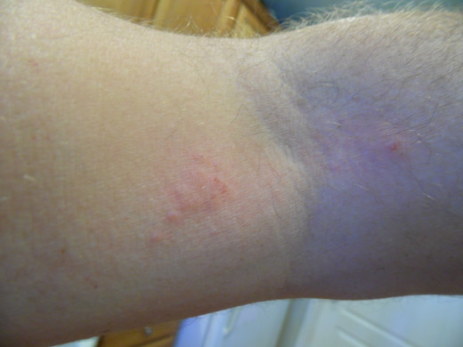 Small patch of poison ivy or oak on my arm.