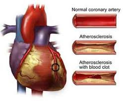 Living with Atherosclerosis and Arteriosclerosis