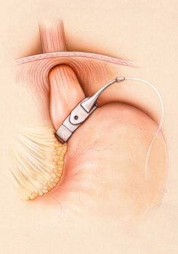 THE GASTRIC LAP BAND IN PLACE