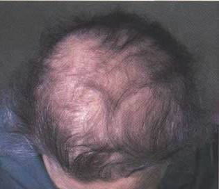 Hair loss from thyroid disorders