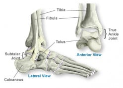 The Facts About Ankle Sprains