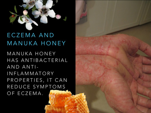 Manuka honey has antibacterial and anti-inflammatory properties, it can reduce symptoms of eczema.