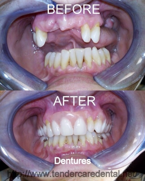 What a difference Dentures can make!