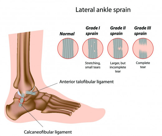 Grades of ankle sprains.