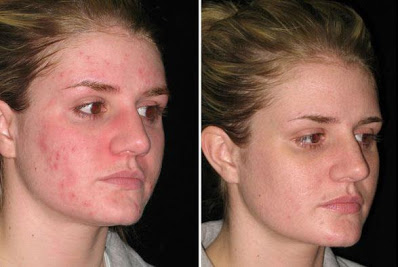 Effects of Argan Oil on skin with acne.