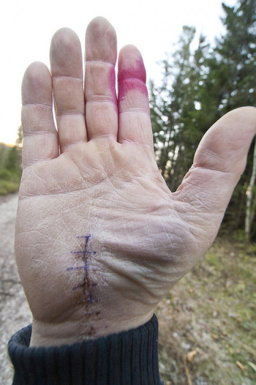 This is what it looks like after a Carpal Tunnel Release surgery