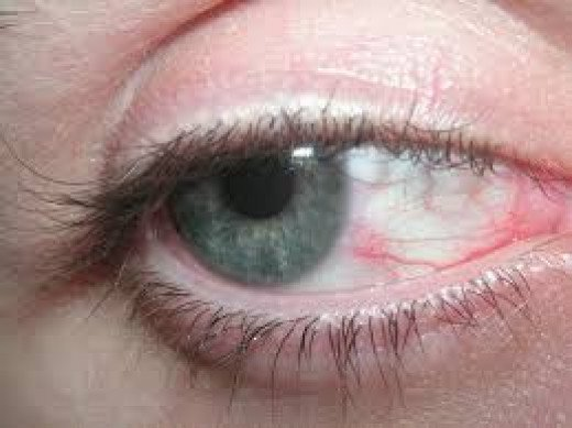 I was always rubbing my eyes like there was something gritty that I could get out. Eye drops were the only thing that helped but just for a little while