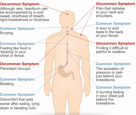 symptoms of heartburn