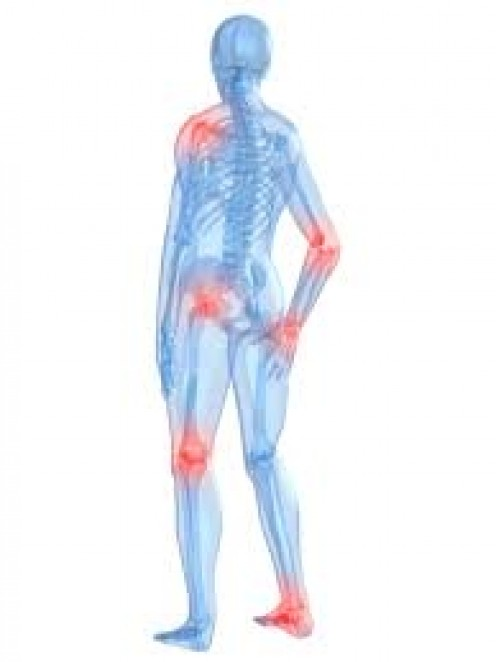 Arthritis Can Affect Many Joints in the Body