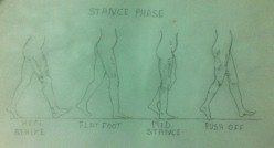 Gait Training – Stance Phase – An Analysis – Variations in Normal Gait